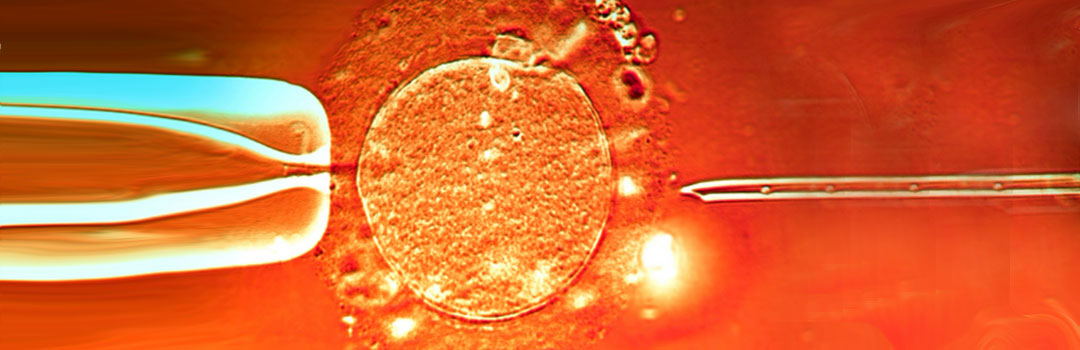 How is ICSI different from IVF?