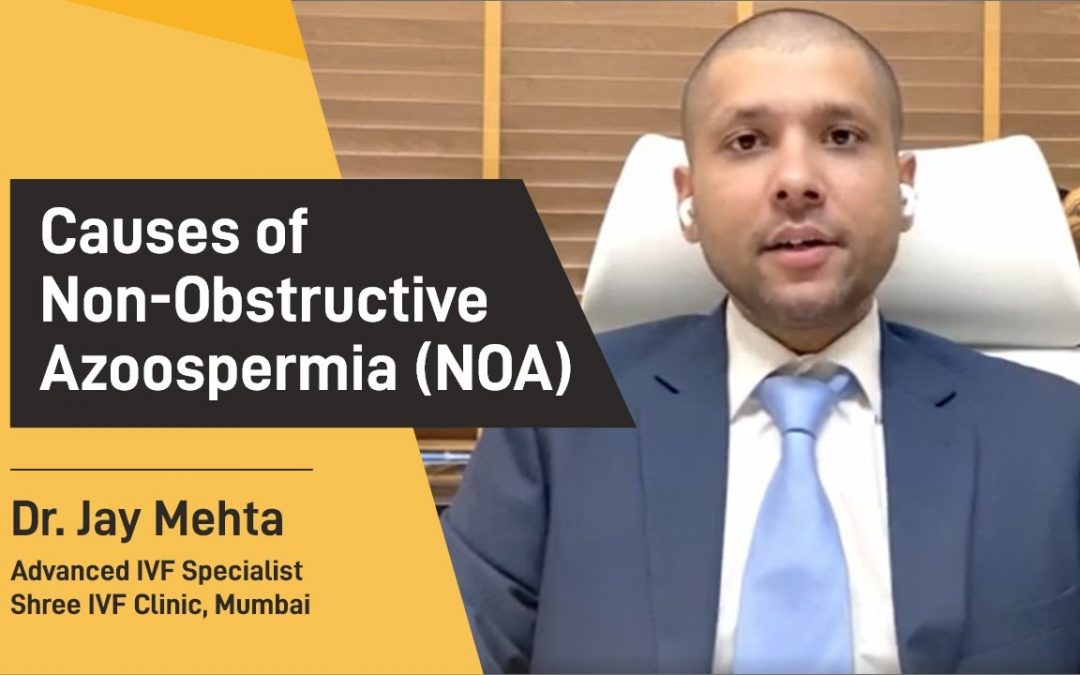 Causes of non-obstructive azoospermia (NOA) &treatment of non-obstructive azoospermia