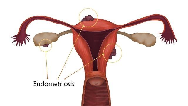 All About Endometriosis | Shree IVF Clinic - Dr. Jay Mehta