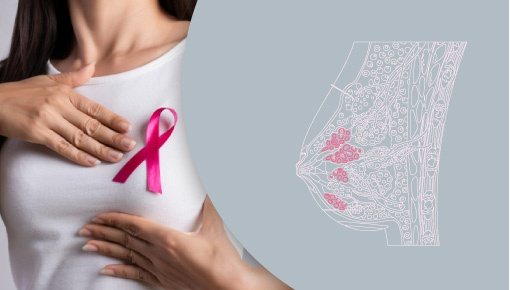 All About Breast Cancer Treatment | Shree IVF Clinic - Dr. Jay Mehta