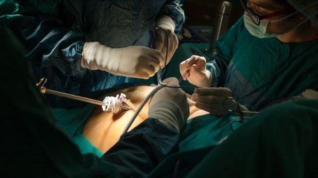 All About Laparoscopic Myomectomy | Shree IVF Clinic - Dr. Jay Mehta