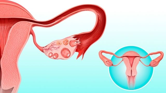 All About Ovulation Induction Fertility Treatment | Shree IVF Clinic - Dr. Jay Mehta