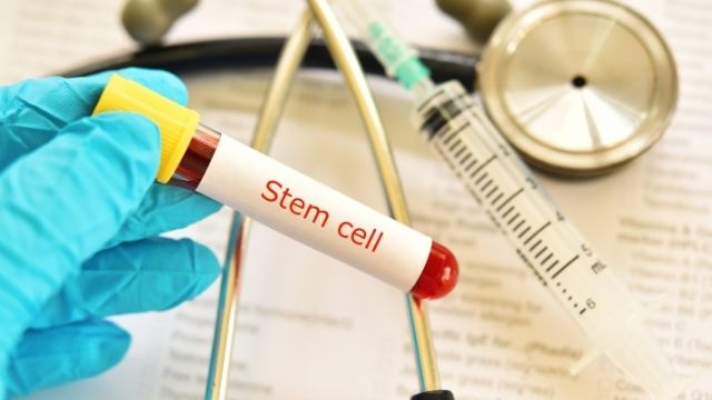 All About Stem Cell Treatment | Shree IVF Clinic - Dr. Jay Mehta