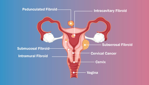 Understanding All About Gynaecology Cancers | Shree IVF Clinic - Dr. Jay Mehta
